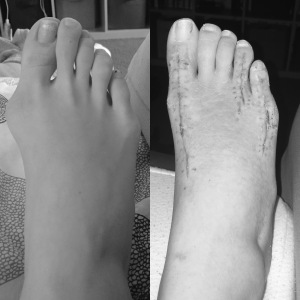 Right foot before and 7 weeks after bunion surgery